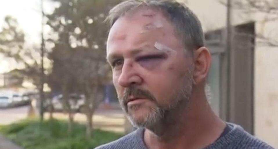 Perth dad Mark Cartledge claims he was bashed with a metal pole during a road rage attack in Perth. Source: 7 News