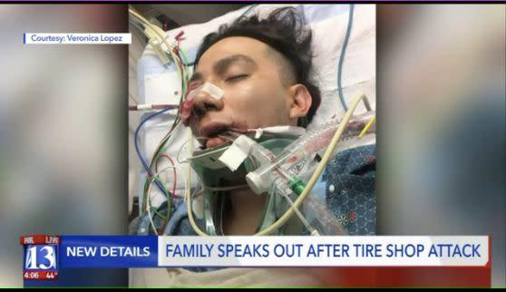 Police say Alan Dale Covington bashedLuis Gustavo Lopez's face with a metal bar after shouting that he hated Mexicans. (Photo: Fox 31)