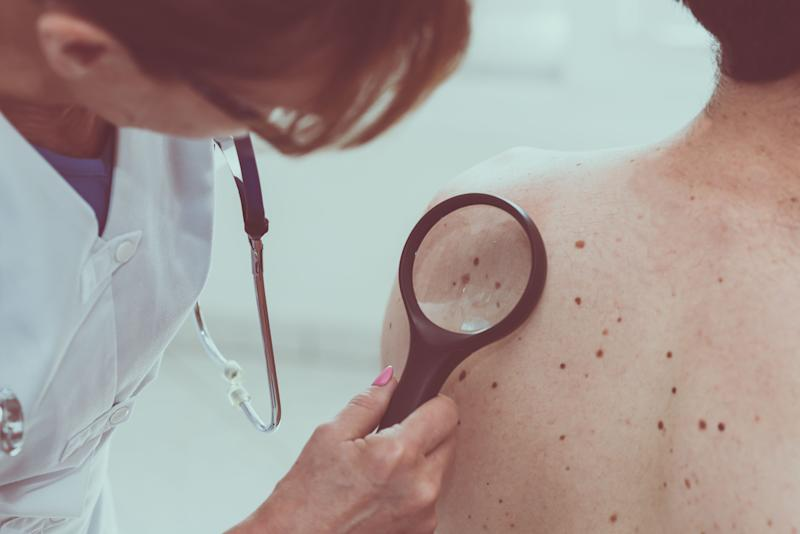 Melanoma Skin Cancer May Be Detected Early with a New Blood Test, Study Finds
