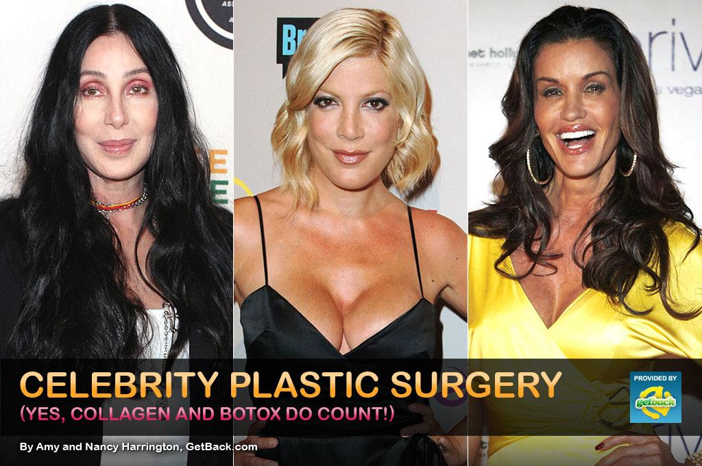 So many stars hardly look their age and have obviously spent a lot of money on improvements, even if they deny going under the knife. Other celebrities, however, have owned up to at least some of the work done on their faces over the years, especially when they've been unhappy with the results. Flip through this gallery featuring some of the best and worst of celebrity plastic surgery.