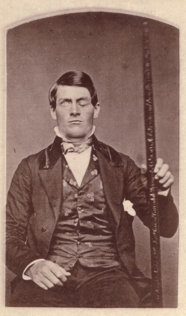 Modern-Day Phineas Gage? How Man Survived a Rod Through His Brain