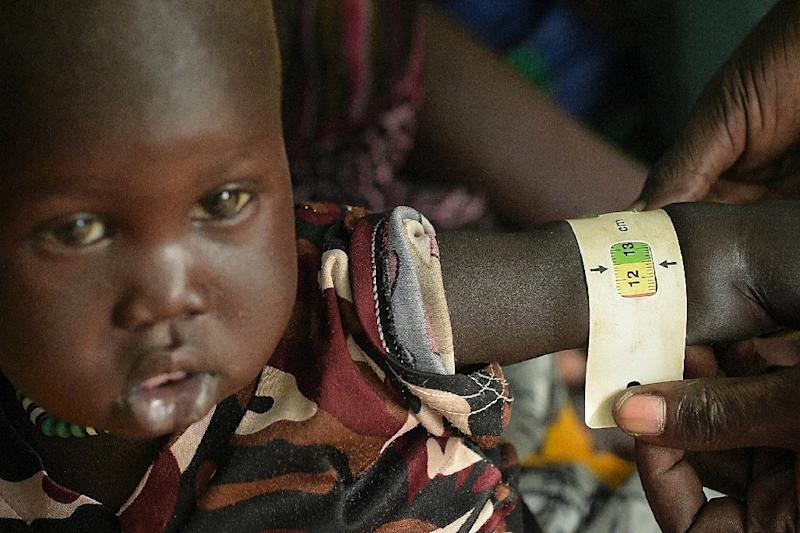 A boy child is measured as he receives treatment at the Udier primary health and care center supported by the International Committee of the Red Cross (ICRC) (AFP Photo/SIMON MAINA)
