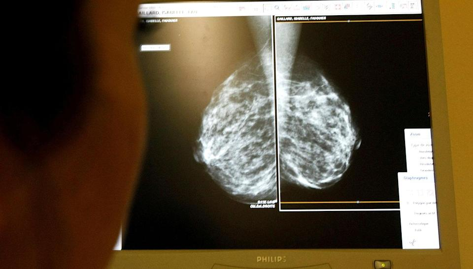 In women, breast cancer was the leading cause of cancer death.. Source: Reuters