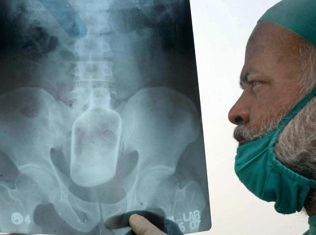 A doctor displays an X-ray of Mohammad Yusuf's stomach that shows a liquor bottle, in Patna, India, Thursday, June 7, 2007. Robbers accosted Yusuf, 30, and shoved the bottle up his rectum when he resisted. The bottle was successfully removed through surgery Thursday. (AP Photo/A.P.Dube, Hindustan Times)