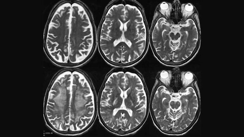 Visible differences in brains that are normal (top) and encephalopathic (bottom). Image: European Congress of Radiology/