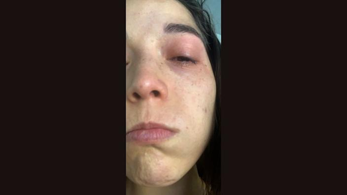 The diluted bleach caused conjunctivitis