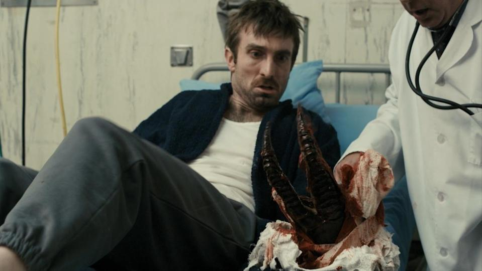 Sharlto Copley's Wikus looks at his alien arm from a hospital bed in District 9