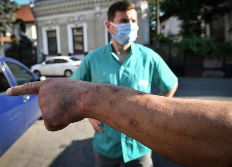 Three times a week, the Romanian anti-AIDS Association (ARAS) goes to the tougher parts of the city to hand out syringes and bandages to injecting drug users (AFP/Daniel MIHAILESCU)