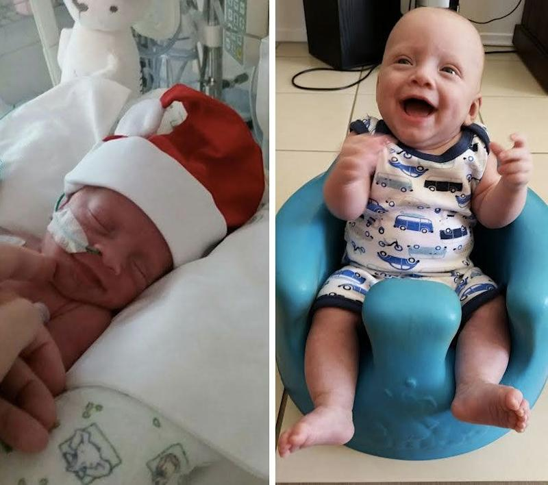 Teddy has made an incredible recovery since his premature birth. Photo: Supplied