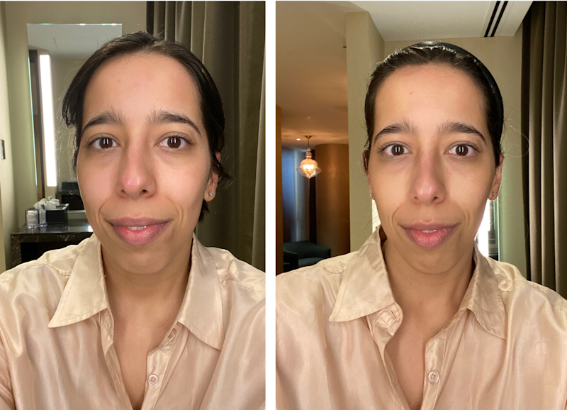 Before and after treatment.
