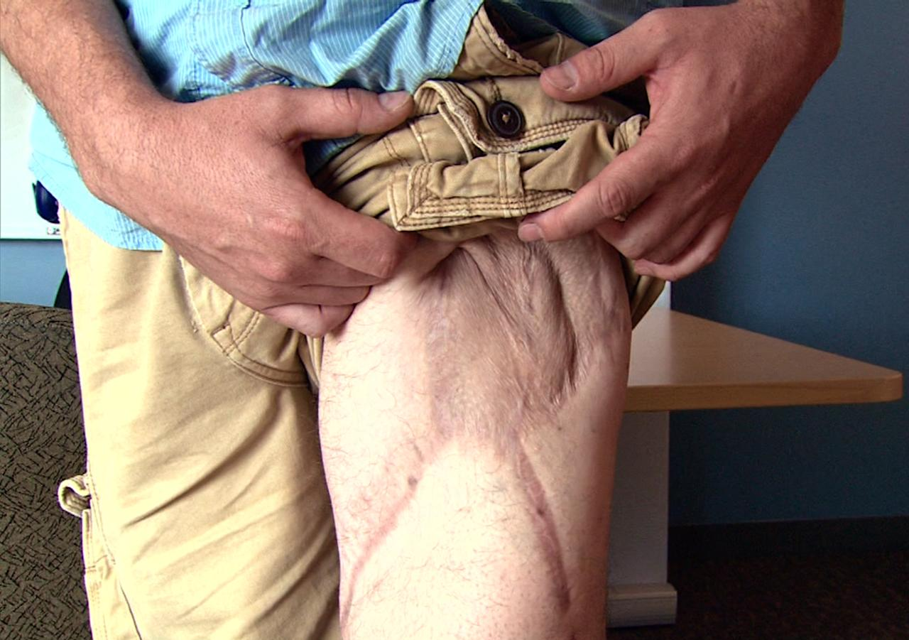 "In this July 9, 2012 image made from video, Marine Sgt. Ron Strang shows his injured leg at the University of Pittsburgh Medical Center in Pittsburgh, Pa. He lost half of his thigh muscle from shrapnel in a bomb blast in Afghanistan, and with an experimental implant of connective tissue developed from pigs, it has had it strengthened. ""It's been a huge improvement,"" he says. (AP Photo/Tom Sampson)"