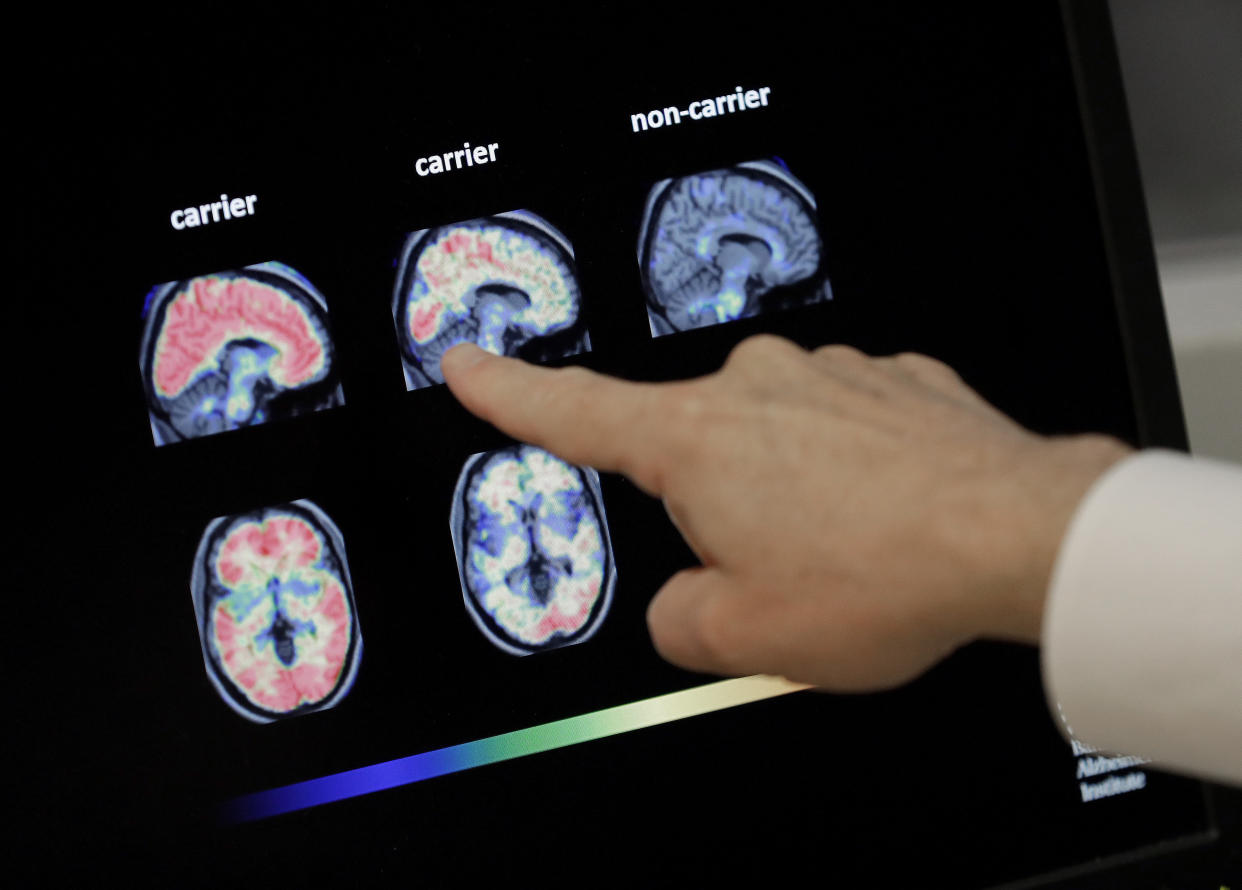 FILE - In this Aug. 14, 2018 file photo, Dr. William Burke goes over a PET brain scan at Banner Alzheimers Institute in Phoenix. The drug company Biogen Inc. says it will seek federal approval for a medicine to treat early Alzheimer's disease, a landmark step toward finding a treatment that can alter the course of the most common form of dementia. The announcement Tuesday, Oct. 22, 2019, is a surprise because the company earlier this year stopped two studies of the drug, called aducanumab, after partial results suggested it was not working.  (AP Photo/Matt York, File)