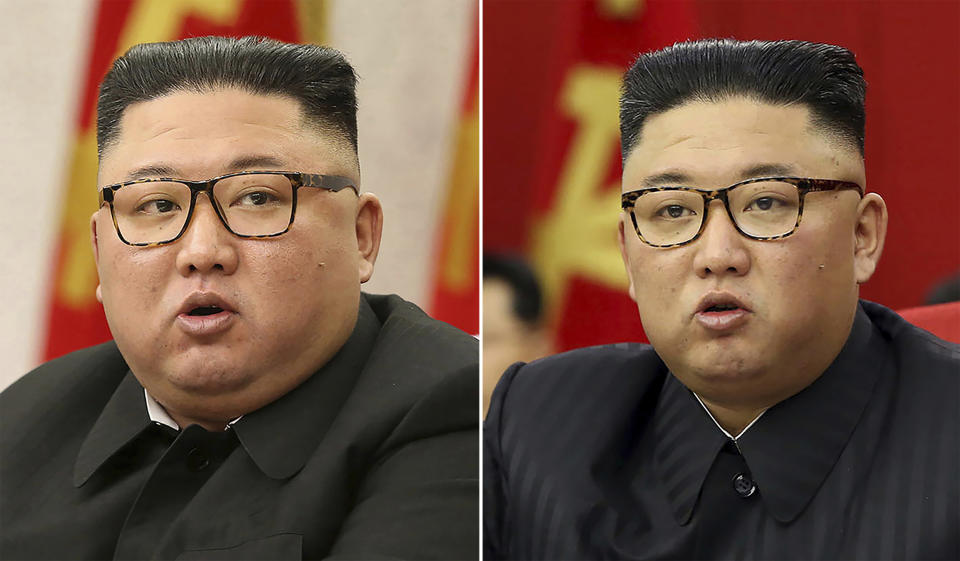 This combination of file photos provided by the North Korean government, shows North Korean leader Kim Jong Un's slimmer appearance. Source: AP