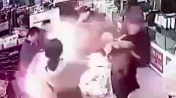 Smartphone Battery Explodes After Man Inexplicably Bites Into It