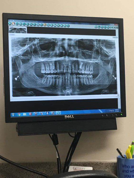 A photo of someone's dental x-ray in a dentist's office.