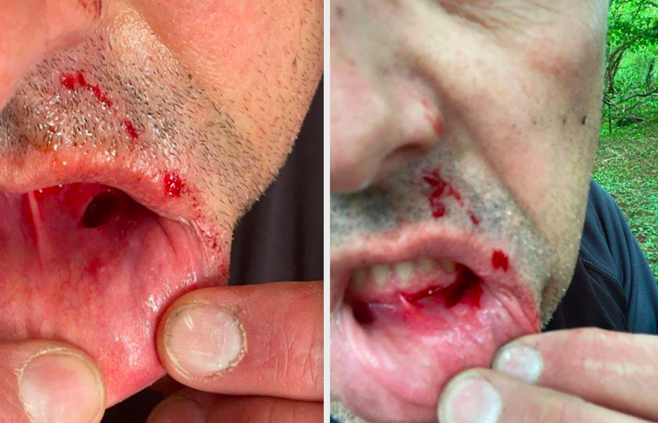 Neil Nunnerley needed three stitches after hitting the barrier on the bike trail. (Wales News)