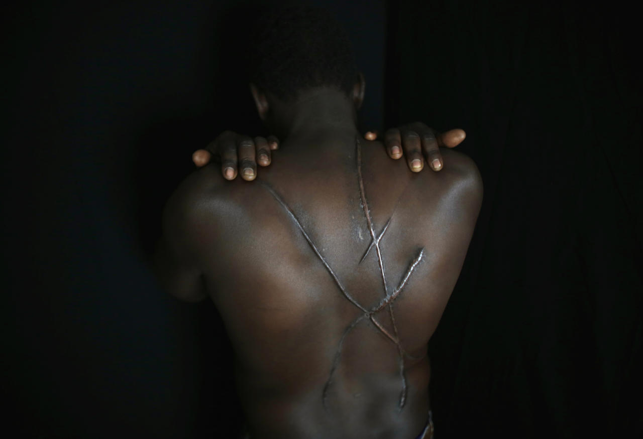 """Hassan Mekki, a 32-year-old Sudanese migrant, shows scars on his back in Athens December 5, 2012. Mekki, who fled conflict in his country in hopes of a better life in Europe, said he was attacked by a group of men holding Greek flags and left with the deep wounds on his back, throat and neck in August 2012, about five months after he illegally entered Greece. Mekki was walking in Athens with a friend from Mauritania when black-shirted men on motorcycles holding Greek flags and shouting """"Go home black"""" and other racists insults came up and knocked him out with a blow to the head. He was covered in blood when he regained consciousness and only later realized that his attackers, which he says were likely tied to the far-right Golden Dawn party, had left large gashes resembling an """"X"""" across his back. """"I don't have the right papers, so I can't go anywhere to ask for help,"""" Mekki said. """"I can't sleep. I'm scared, maybe they will follow me and my life is in danger now."""" Picture taken December 5, 2012. REUTERS/Yannis Behrakis (GREECE - Tags: CIVIL UNREST POLITICS SOCIETY IMMIGRATION TPX IMAGES OF THE DAY)"""