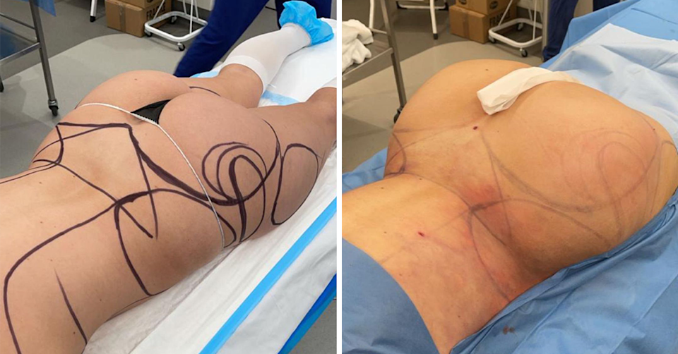 Before and after Cathy's surgery.