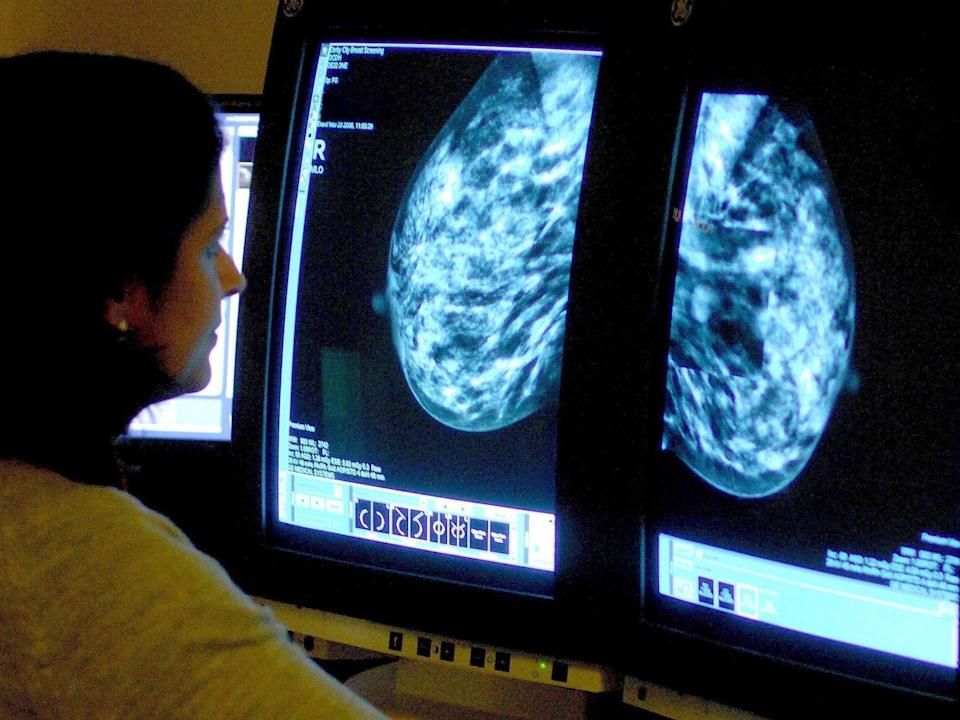 A consultant analyzing a mammogram: PA