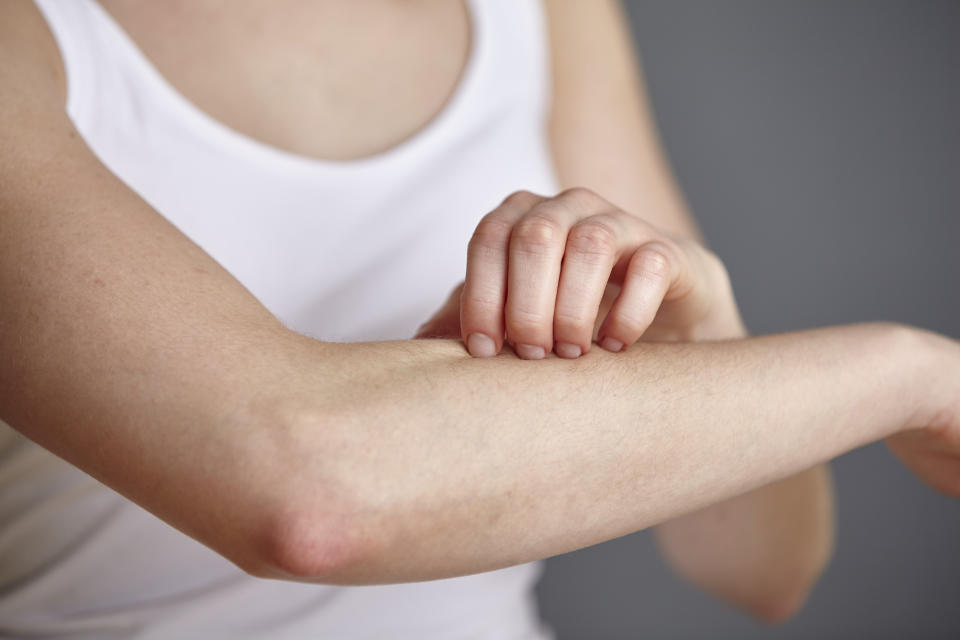 From eczema to acne, skin conditions are common. (Stock, Getty Images)