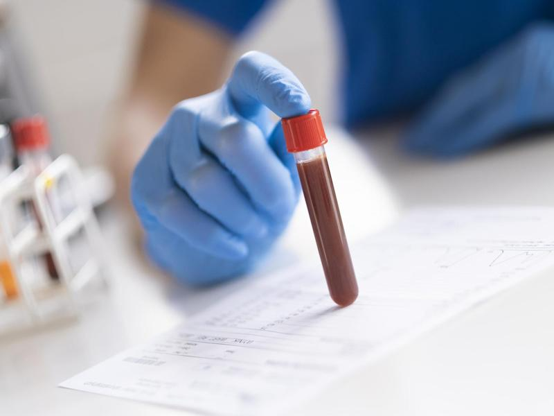 A simple blood test could tell how well someone would respond to treatment for prostate cancer, researchers have said: iStock