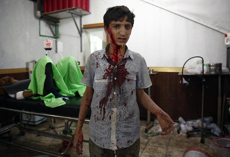 A Syrian boy waits to receive treatment at a make-shift hospital in the rebel-held area of Douma, east of the capital Damascus, following air strikes by Syrian government forces on a marketplace on August 16, 2015 (AFP Photo/Abd Doumany)