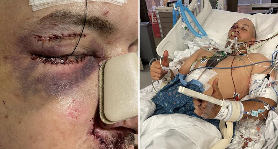 Scott DeShields Jr seen in hospital with injuries after a gun exploded in his face.