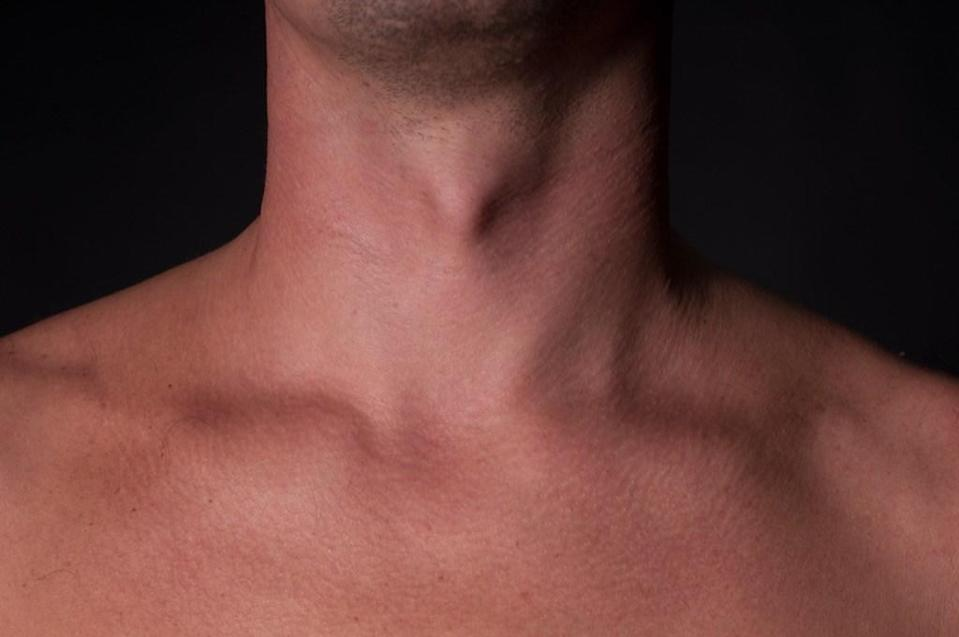 "The Adam's Apple is the thyroid cartilage that surrounds the larynx. Contrary to popular belief, both women and men have one. It's just more prominent in males because the larynx (voice box) <a href=""https://www.livescience.com/32470-why-do-we-have-an-adams-apple.html"" rel=""nofollow noopener"" target=""_blank"" data-ylk=""slk:is far larger in men"" class=""link rapid-noclick-resp"">is far larger in men</a> (hence the deeper voices)."