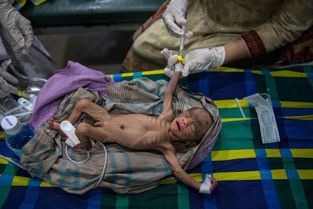 <p>A severely malnourished, premature 15 day old baby gets treated in the pediatric-neonatal unit at the 'Doctors Without Borders' Kutupalong clinic on October 4, 2017, in Cox's Bazar, Bangladesh. (Photograph by Paula Bronstein/Getty Images) </p>
