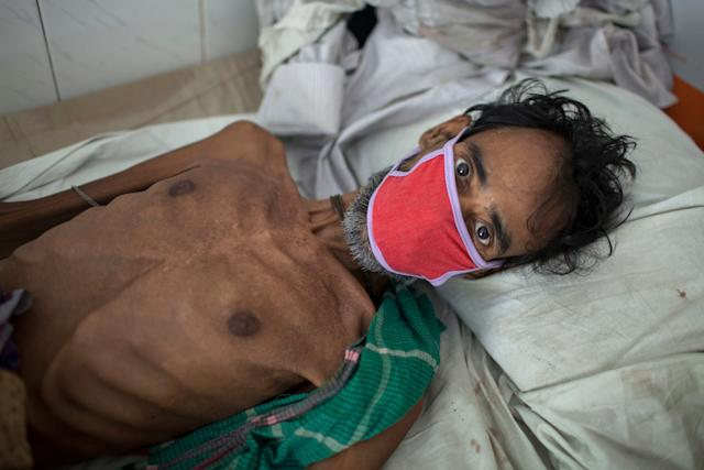 A 55-year-old tuberculosis patient in Bangladesh in 2016. It isestimated that 75 million people will die of multidrug-resistant TB by 2050.