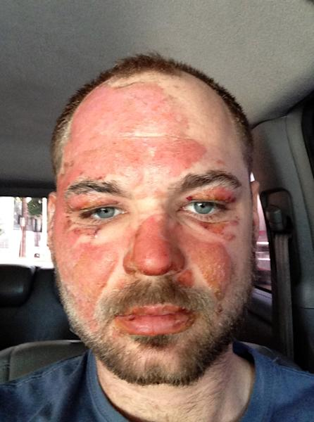 """In this picture released by American magician Wayne Houchin, Houchin looks at the camera in Santo Domingo, Dominican Republic, Thursday, Nov. 29, 2012. Houchin, of Chico, California, is receiving treatment for burns after a local television show host lit his head on fire with a flammable cologne while taping his Nov. 26 appearance on the Dominican Republic's """"Closer To The Stars"""" TV program. (AP Photo)"""