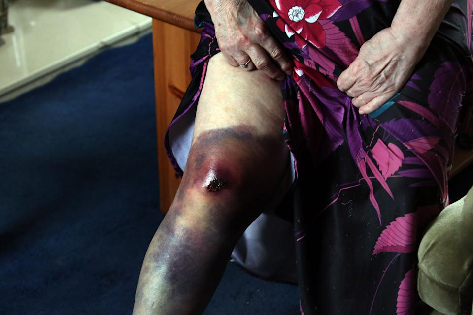The 79-year-old, who is battling leukaemia, was left black and blue and had to spend several hours in A&E. (NCJ Media)