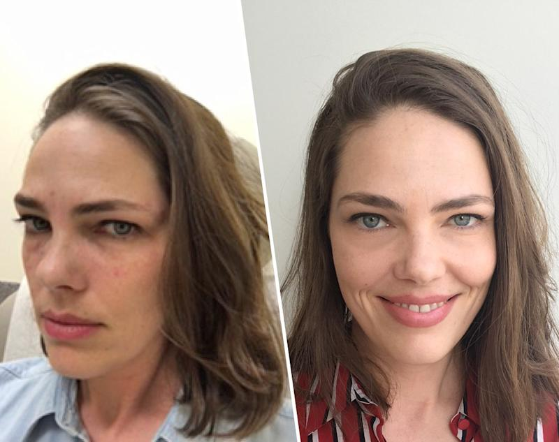 Tester #3: Florence Kane, before and after the derm