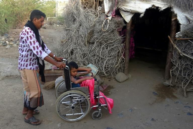 Abdullah, 7, was wounded by a landmine in Yemen's western province of Taez