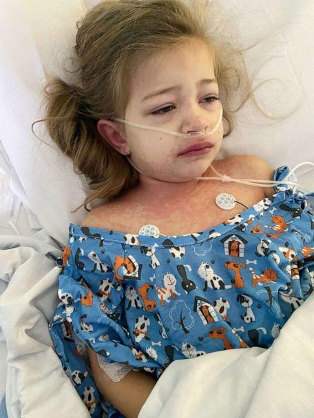 PHOTO: Caption: Peyton Copeland, 5, was hospitalized with Multisystem Inflammatory Syndrome in Children (MIS-C), a rare post-COVID illness. (Tara Copeland)