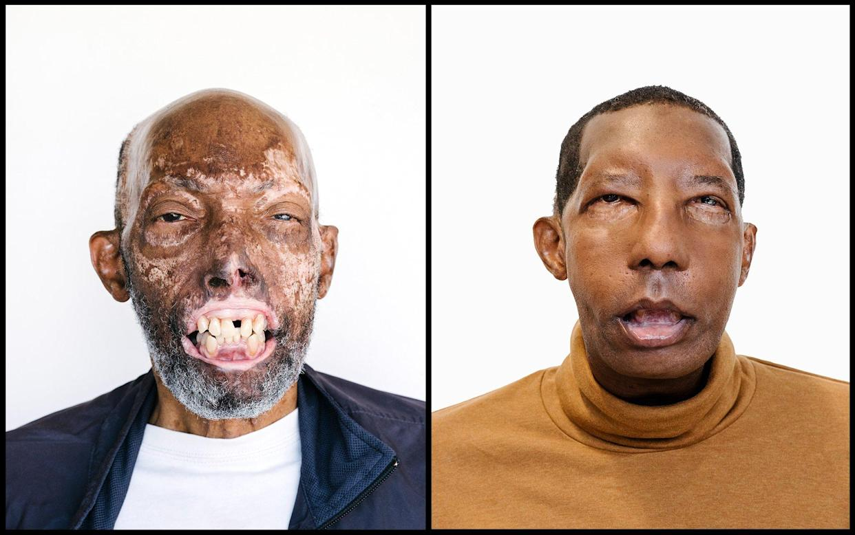 He's the First African American to Receive a Face Transplant. His Story Could Change Health Care
