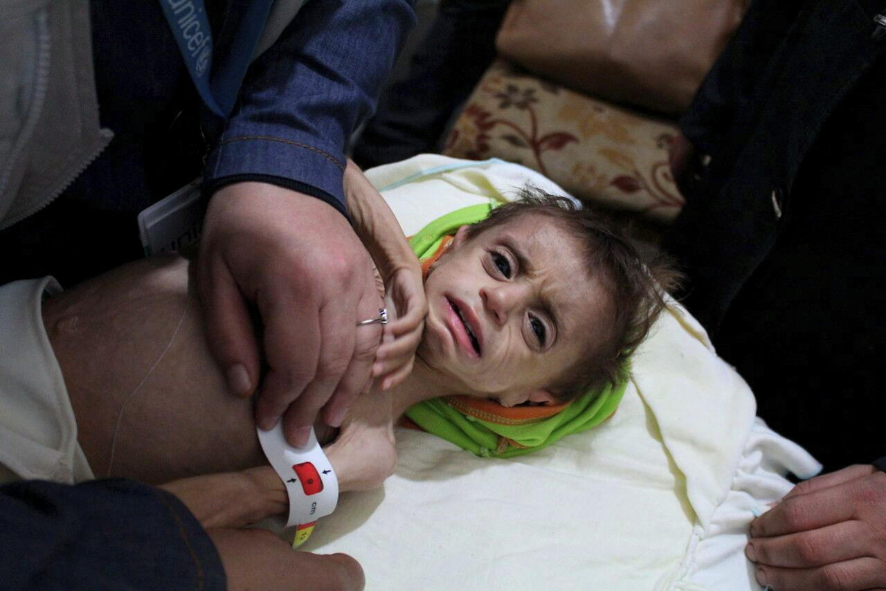 <p> This photo provided on Monday, October 30, 2017 by UN Office for the Coordination of Humanitarian Affairs (OCHA), shows a severely malnourished child at the al-Kahef hospital in Kafr Batna, Eastern Ghouta near Damascus, Syria. Humanitarian officials are warning that conditions outside Syria's capital have reached crisis levels, as the government refuses to give up a siege against its opponents that has trapped close to 400,000 people without enough food, fuel or medicine for the winter. (UN OCHA via AP) </p>