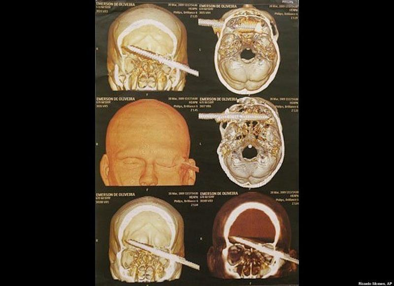 These CT scans show a 6-inch spear lodged in the head of Emerson de Oliveira Abreu, who sought treatment at a hospital in Brazil in late March. The spear pierced his head during an underwater fishing accident. After doctors operated to remove the spear, Abreau said he would never fish underwater again.