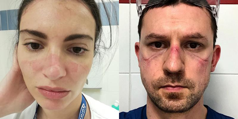 Italian nurses share selfies of bruised faces after 13-hour shifts