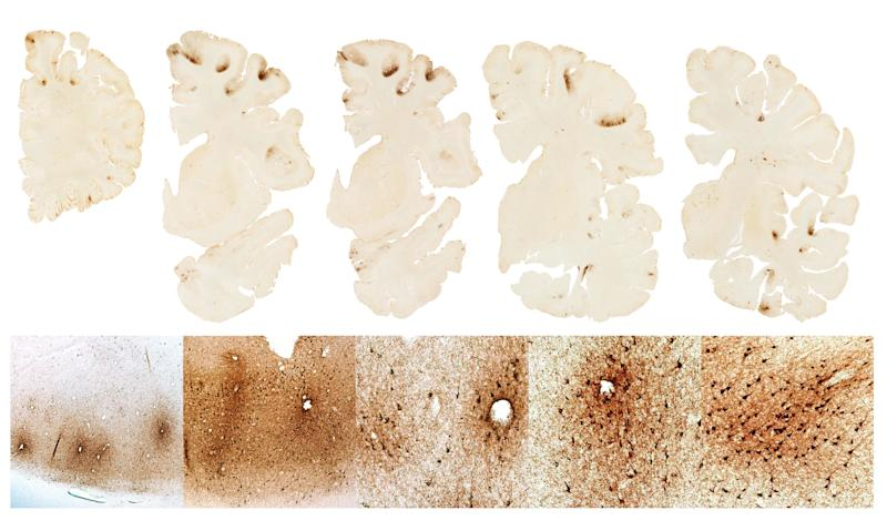 The top row shows severe deposition of tau protein in the frontal lobes of Hernandezs brain The bottom shows microscopic deposition of tau protein in nerve cells a unique feature of CTE (Boston University)