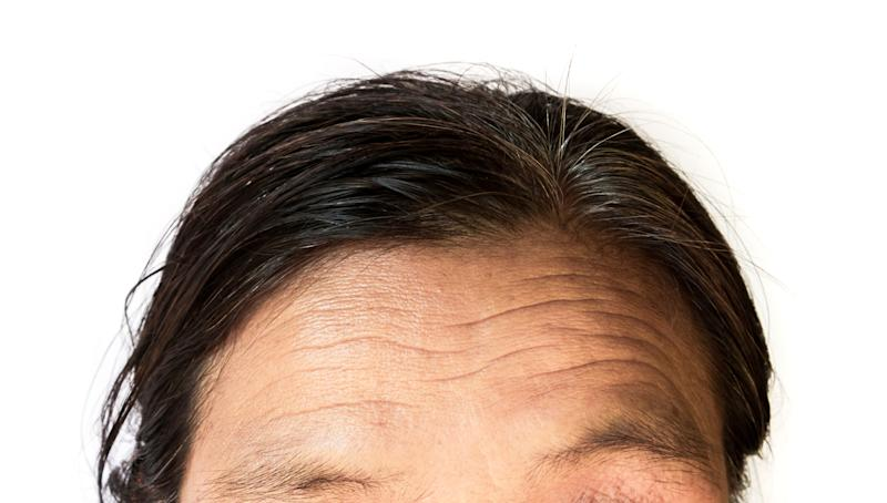 Heart disease can be predicted from your forehead wrinkles