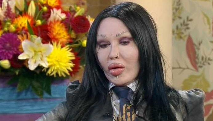 Pete Burns was due to appear on Loose Women yesterday