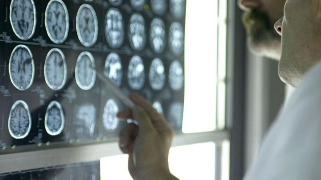 Montana Man Gets $59,000 for Brain Cancer Misdiagnosis