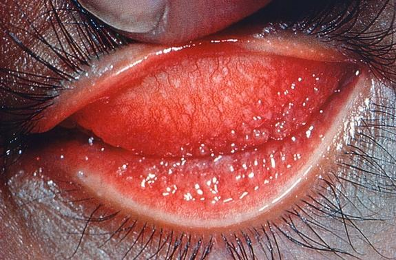 Eyelid inflammation caused by the <i>Chlamydia trachomatis</i> bacterium, known as trachoma. The disease is the leading cause of preventable blindness in the world today and has infected humans for millenia.