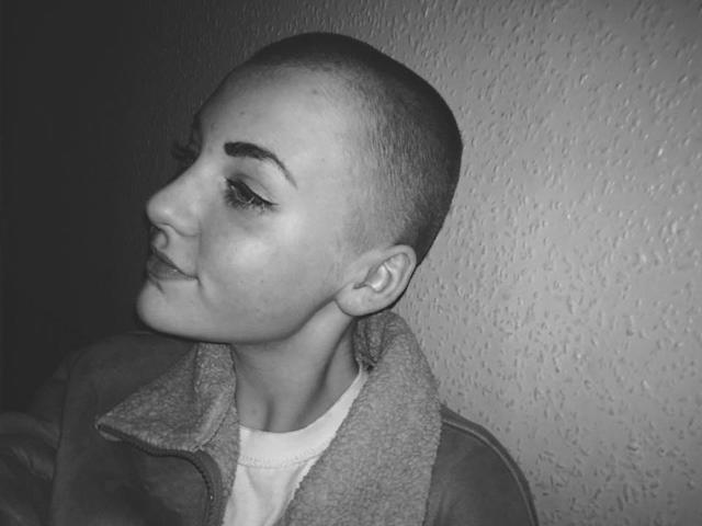 Niamh Baldwin's shaved her head for charity, but her hairstyle doesn't meet school policy. (Photo: Facebook/Niamh Baldwin)