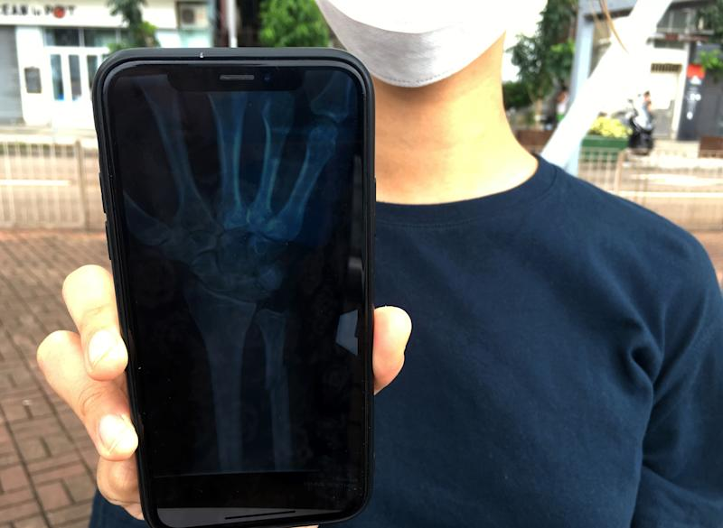 In this Oct. 7, 2019, photo, an organizer of an underground network of volunteer Hong Kong medics that are treating injured protesters shows an X-ray image on her mobile phone that revealed a fracture above the left wrist of a protester in Hong Kong. The 22-year-old protester, too scared to seek treatment in government hospitals, reached out to the network using an encrypted messaging app and said he'd been struck by a baton on his arm. (AP Photo/John Leicester)