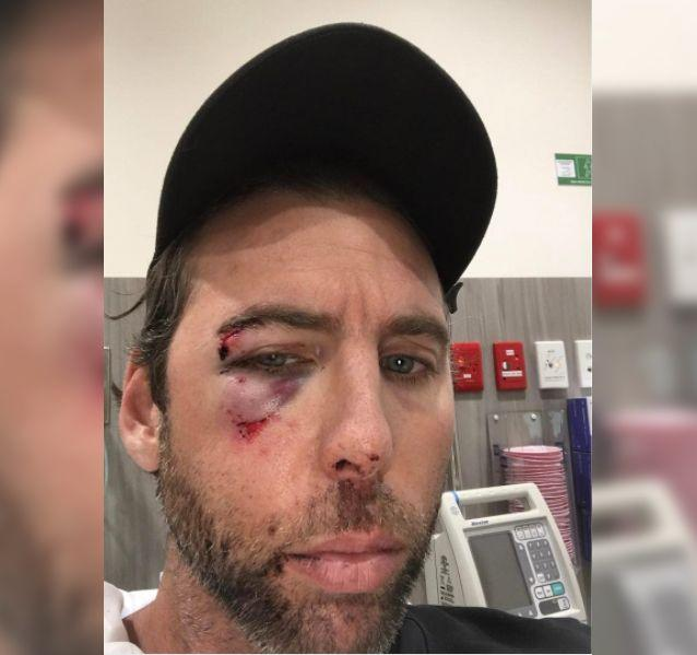 Grant Hackett posted the image on Instagram on Thursday showing his battered face, he said was caused by his brother. Picture: Instagram/grant__hackett