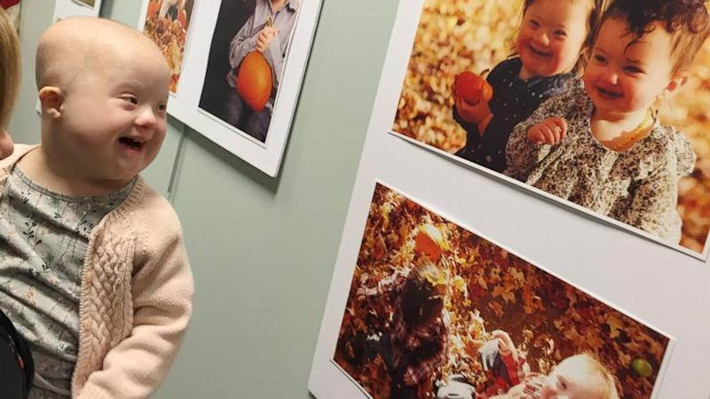 Girl With Down Syndrome and Cancer Has Unforgettable Reaction to Self Portrait