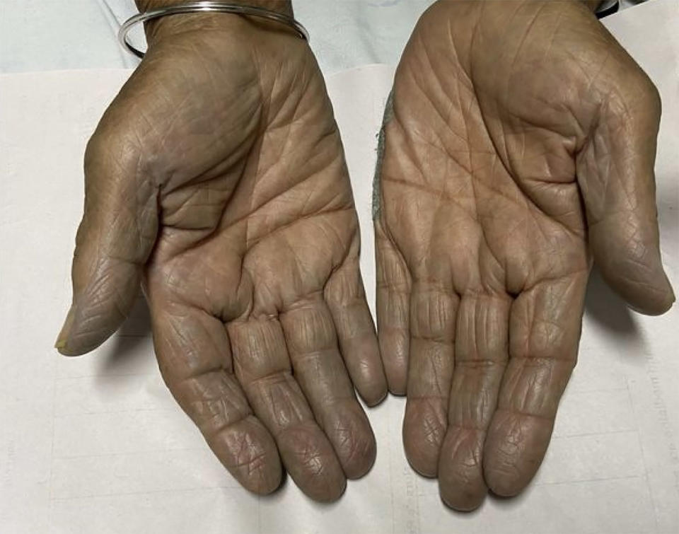 A woman, 85, pictured with green hands.