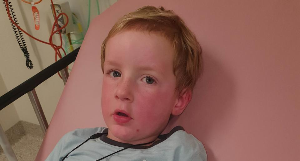 Owen in hospital with a red face after he had his first anaphylaxis scare when he was three after eating a home-made wonton. Source: Supplied.